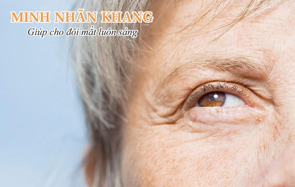 Mắt bị lão hóa là tình trạng dễ gặp phải khi tuổi tác tăng cao
